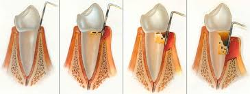 Scaling And Root Planing Mesa Az East Valley Implant