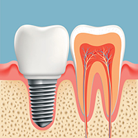 Dental implants at East Valley Implant & Periodontal Center.